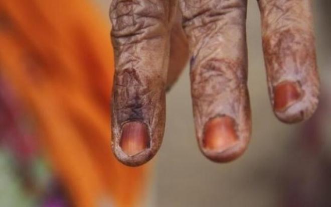 'শয়তান তাড়ানোর' নামে আদিবাসী নারীকে পিটিয়ে হত্যা