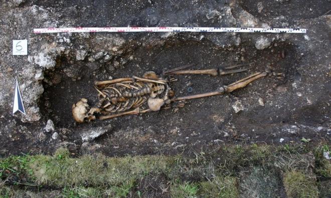 ১৫০০ বছর  পূর্বের কৃত্রিম পা সংযোজিত কঙ্কালের সন্ধান